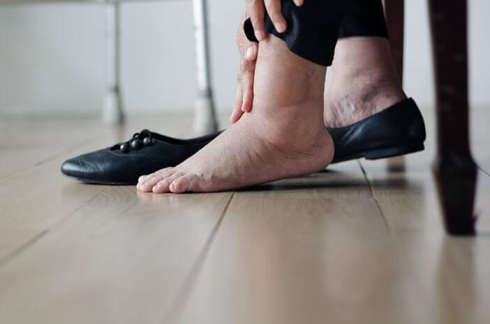 kaki-bengkak-juga-dapat-disebabkan-oleh-penyakit-jantung