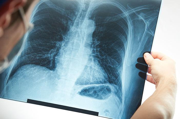 Kapan Operasi Diperlukan untuk Mengobati Tumor Tulang?