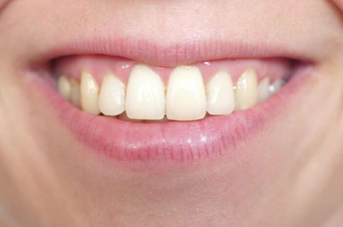 Karang Gigi Bisa Sebabkan Sakit Gigi, Benarkah?