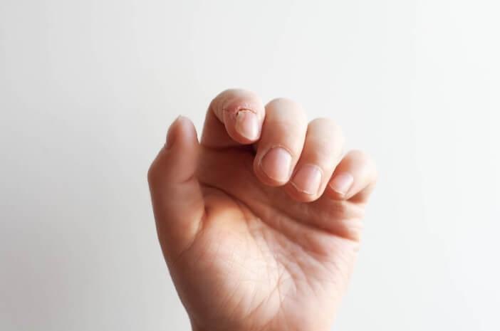 Kenali Lebih Jauh Penyebab Penyakit Paronikia