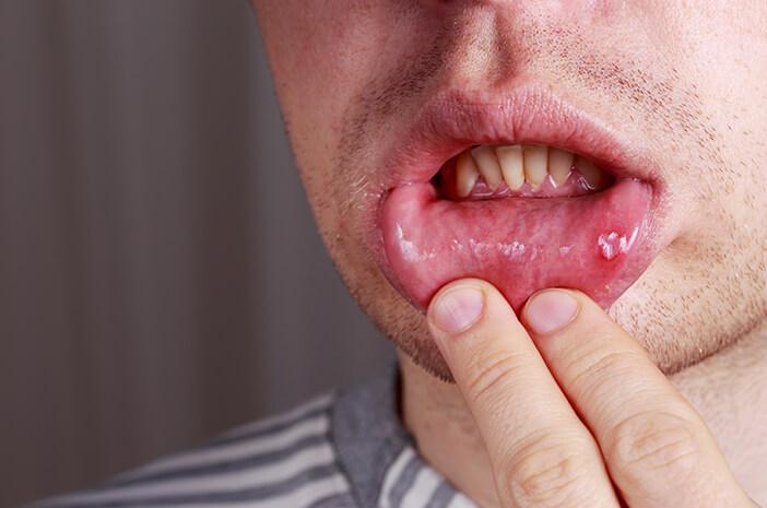 Kenali 7 Penyakit yang Rawan Terjadi di Mulut