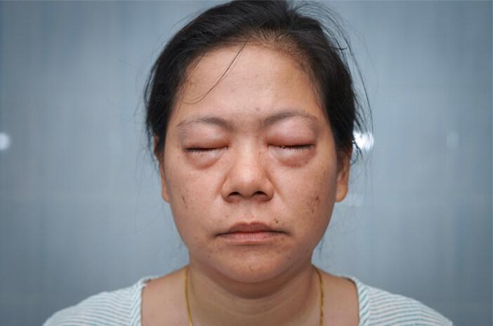 Kenali Angioedema, Pembengkakan karena Alergi