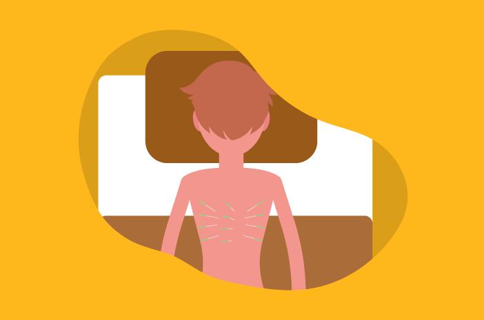 Kenali Manfaat Terapi Akupunktur untuk Kesehatan Tubuh