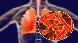 Kenali Penjelasan Tentang Bakteri Pneumonia
