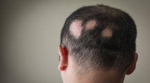 Kenali Perawatan Rumahan untuk Atasi Alopecia Areata