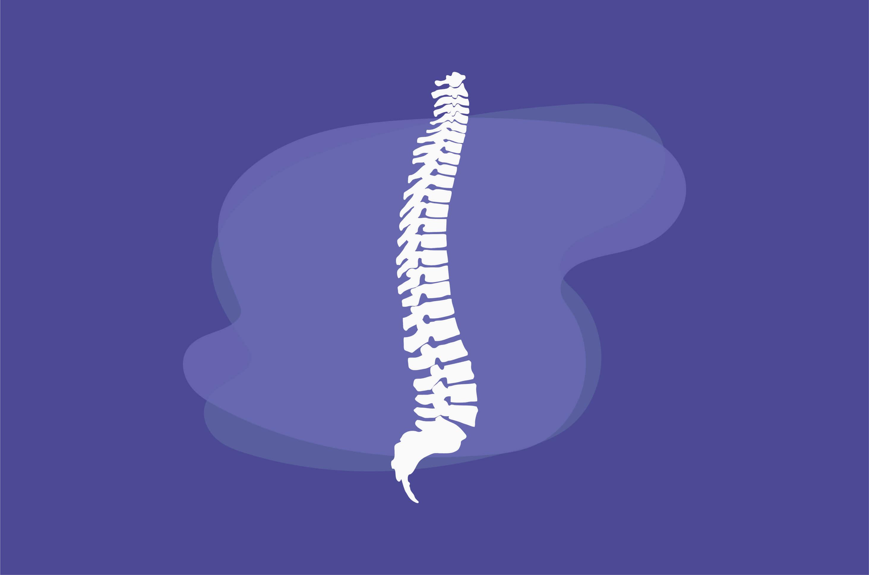 Kenali Spondylosis, Penyakit yang Menyerang Tulang Belakang