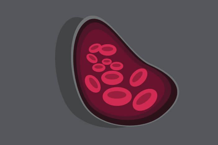 Paroxysmal Nocturnal Hemoglobinuria, gangguan darah