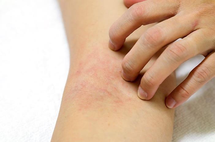 Ketahui Pengobatan untuk Atasi Myositis