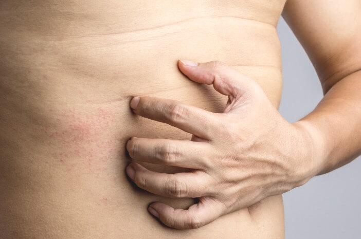 Vaskulitis,  reaksi alergi