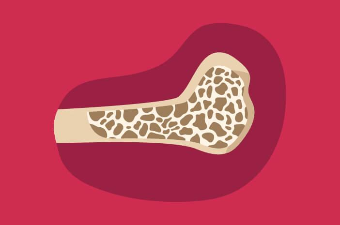 risiko osteoporosis
