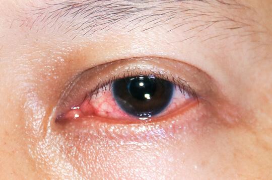 Ketahui 4 Jenis Radang yang Bisa Menyerang Mata