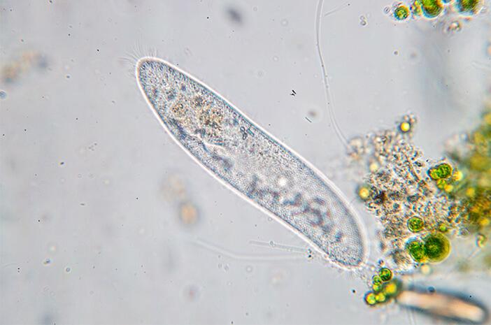 Ketahui Jenis Penyakit yang Disebabkan karena Infeksi Streptococcus