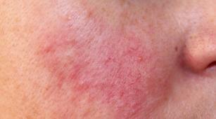 Ketahui Penanganan Kondisi Kulit yang Terinfeksi Rosacea