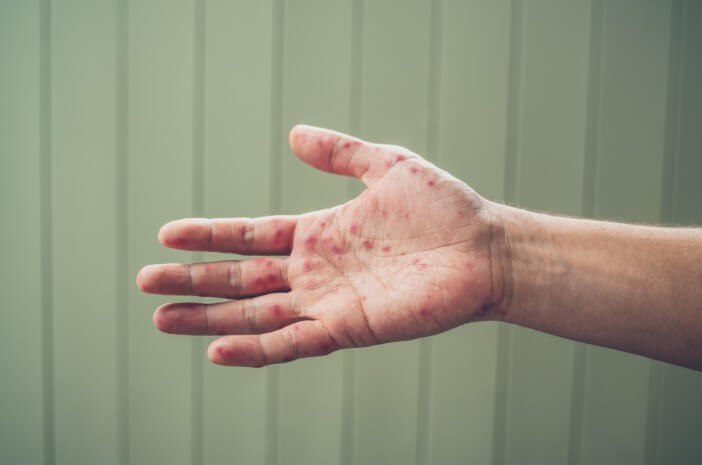 Ketahui Pencegahan Kondisi Henoch Schonlein Purpura