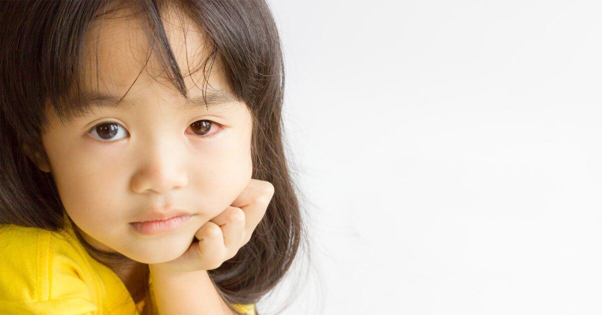 Ketahui Penyebab Alergi Mata pada Anak