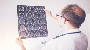 Ketahui Perbedaan Neurologi dan Neurosurgeon
