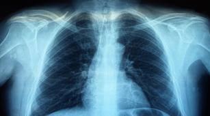 Ketahui Prosedur Foto Rontgen dalam Radiologi