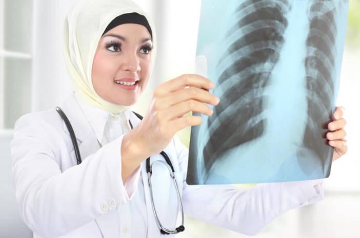 Ketahui Prosedur untuk Diagnosis Kanker Paru