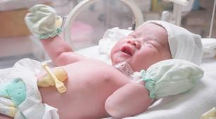 Kondisi Mata Bayi Prematur Bisa Dideteksi dengan Screening Retina, Benarkah?