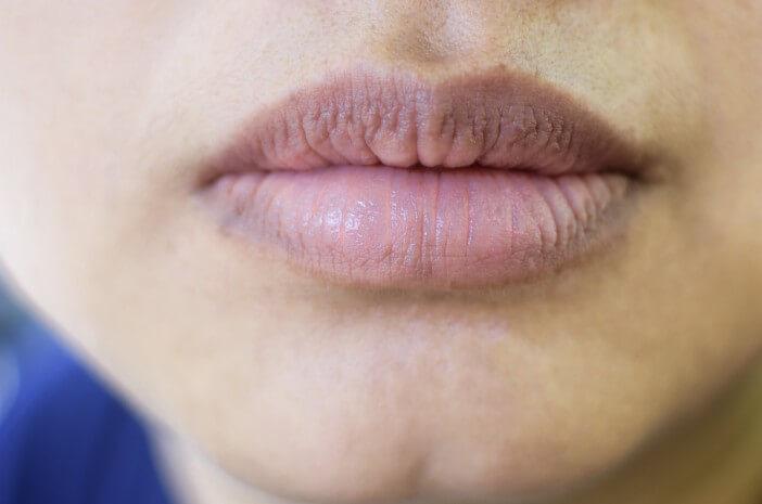 kondisi-oral-thrush-sebabkan-mulut-kering-ini-penjelasannya-halodoc