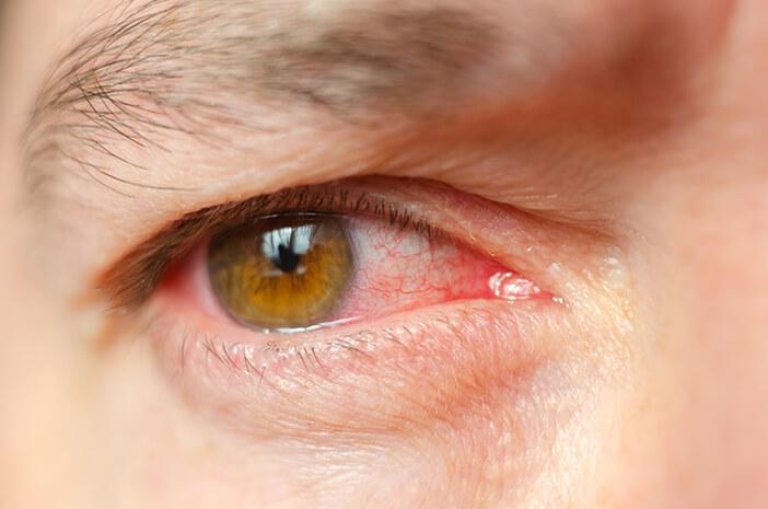 Lakukan 3 Hal Ini untuk Mencegah Iridosiklitis