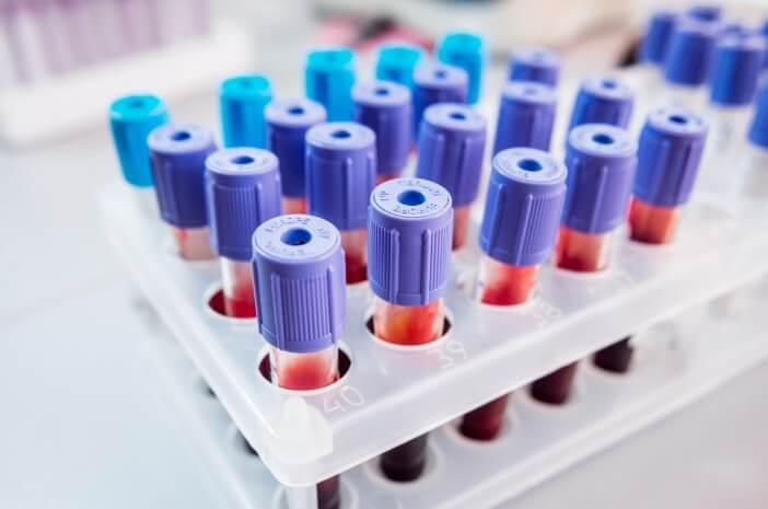 Lebih Bahaya Mana, Hepatitis A, B, atau C?