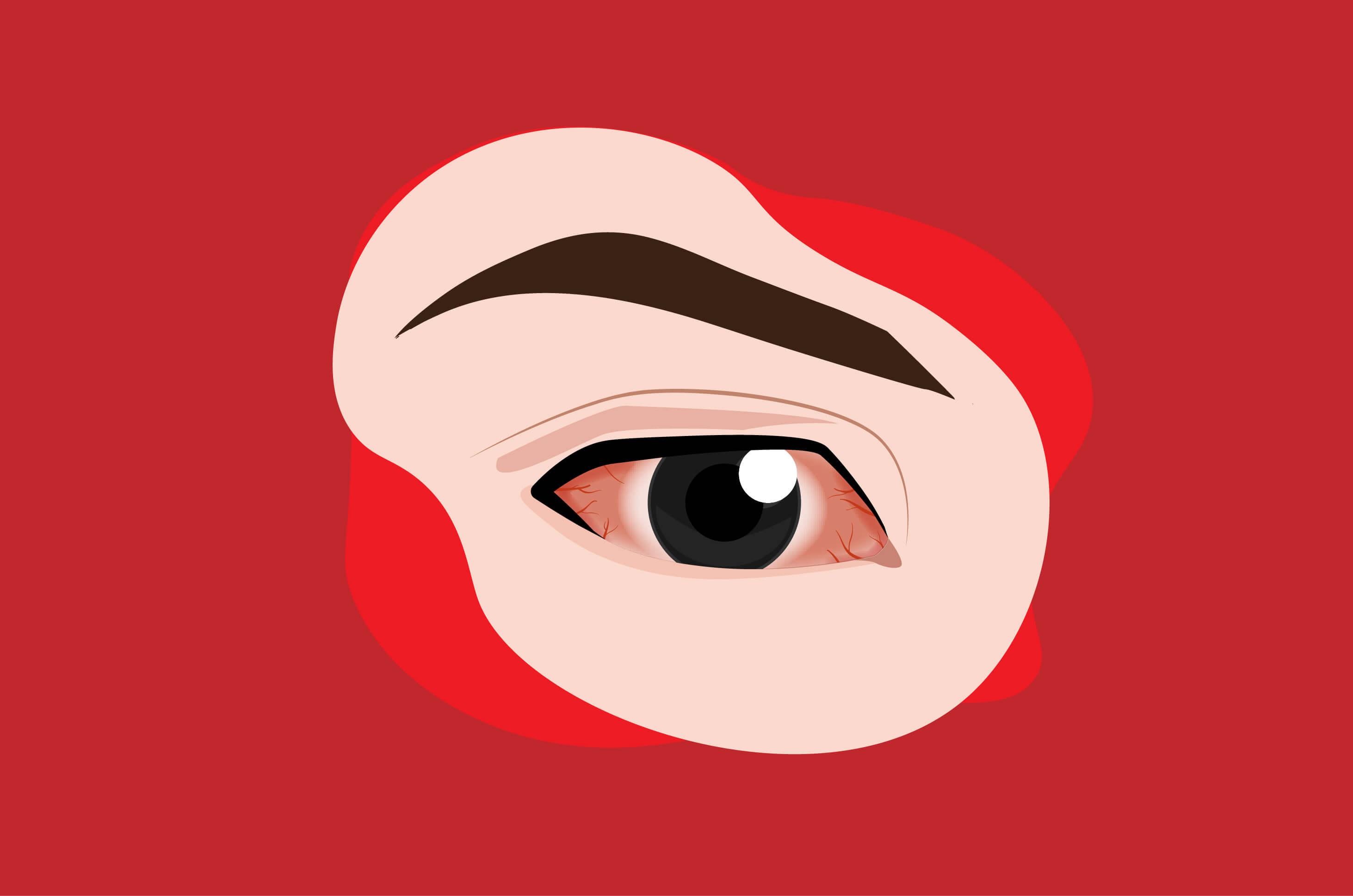 Mata Kering Sebabkan Ulkus Kornea, Ini Alasannya