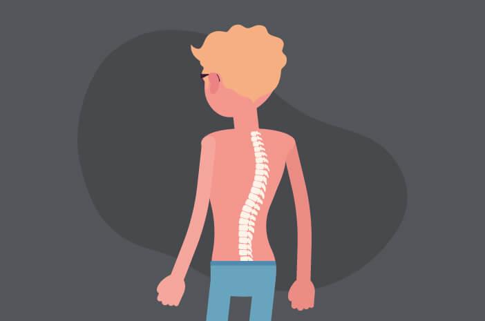Mengapa Pengidap Spina Bifida Berisiko Terkena Paraplegia?