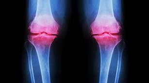 Mengapa Perempuan Lebih Berisiko Terkena Osteoartritis?