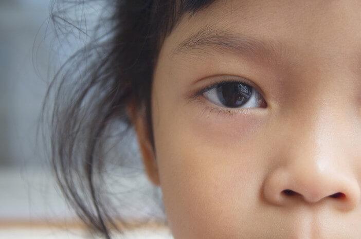 Mengenal Lebih Dekat Penyebab Sindrom Horner pada Anak