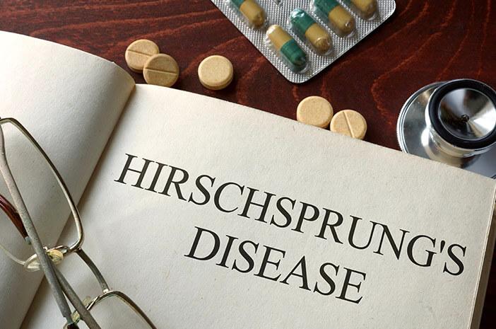 Mengidap Hirschsprung, Ini yang Akan Dialami Tubuh