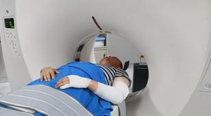 Menjalani Radioterapi Bisa Sebabkan Liposarkoma