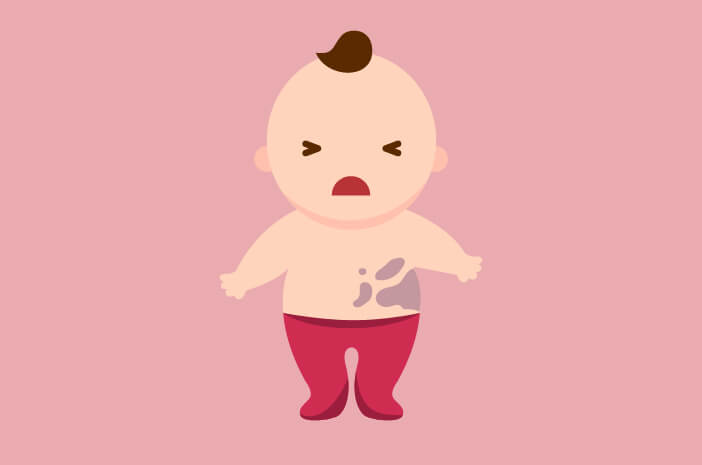 Muncul Bercak Mongol pada Bayi, Orangtua Tidak Perlu Panik