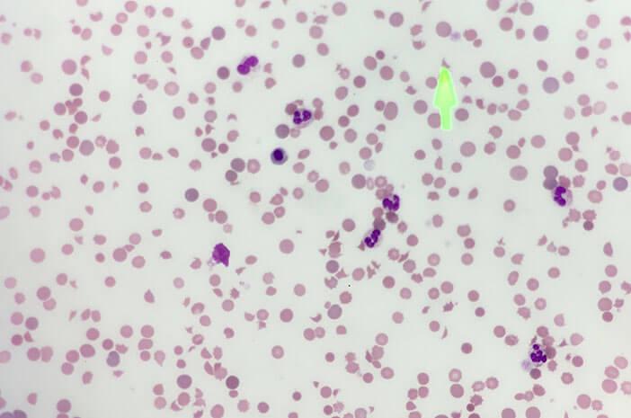 Mutasi Genetik Bisa Sebabkan Paroxysmal Nocturnal Hemoglobinuria