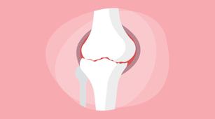 Osteoarthritis Sebabkan Kista Baker, Ini Alasannya