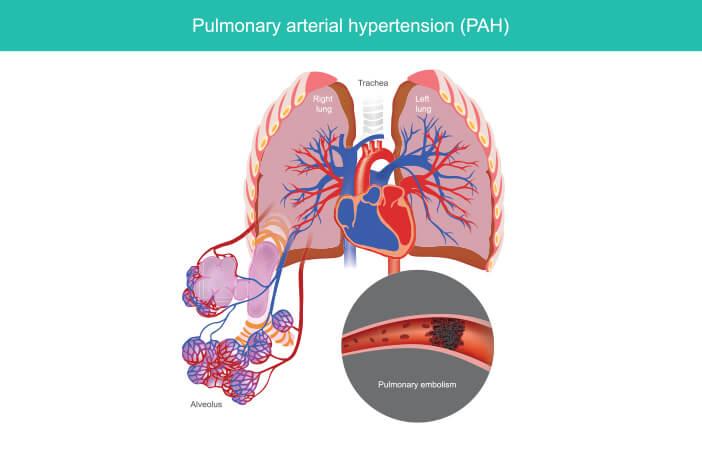 Pemeriksaan untuk Deteksi Hipertensi Pulmonal