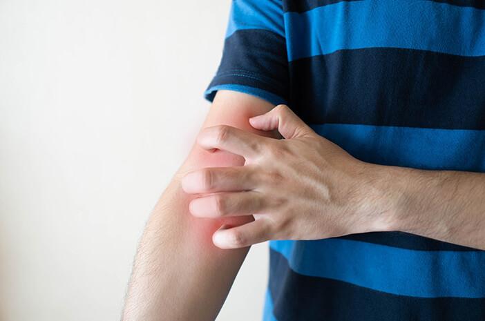 Pengidap Dermatitis Rentan Terkena Dermatographia, Benarkah?