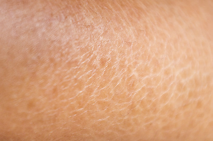 Pengidap Xerosis Rentan Alami Dermatitis Numularis