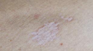 Pengobatan untuk Mengatasi Lichen Sclerosus
