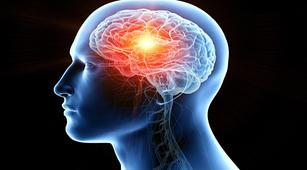 Penyebab Utama Terjadinya Aneurisma Otak