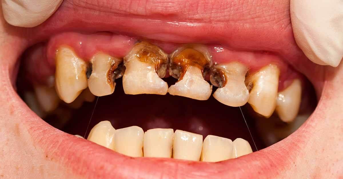 Penyebab Terjadi Baby Bottle Tooth Decay