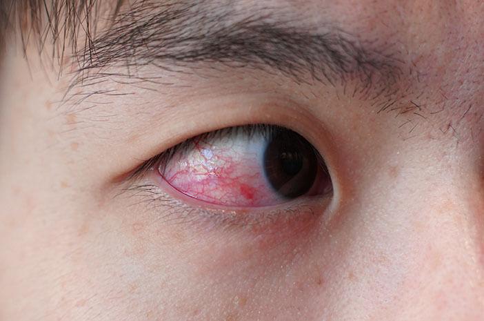 Mata Berdarah? Ini Penyebab Terjadinya Perdarahan Subkonjungtiva