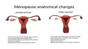 Penyebab Wanita Alami Perimenopause