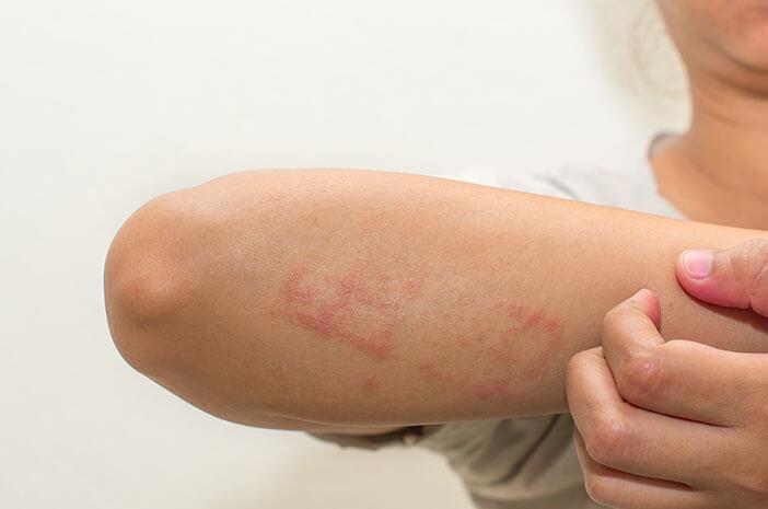 Perlu Waspadai Faktor yang Dapat Menyebabkan Dermatitis Atopik