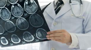 Perlukah CT Scan pada Tiap Trauma Kepala?