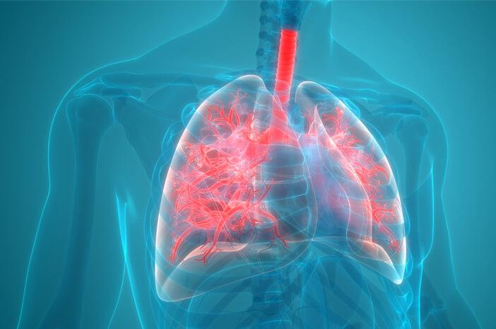 Pneumonia Bisa Sebabkan Bronkiektasis, Ini Alasannya