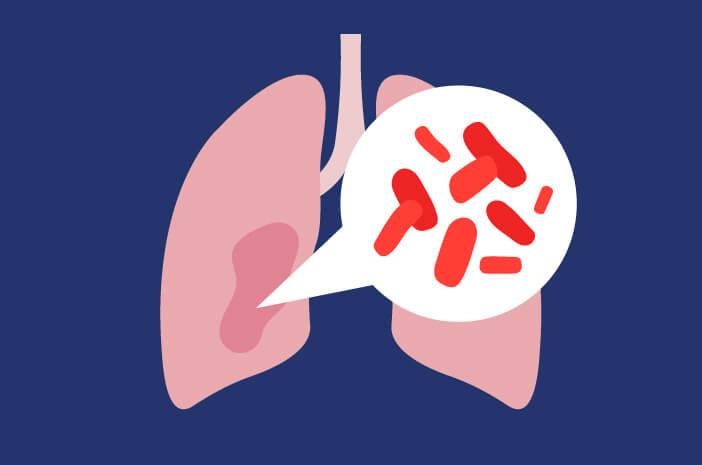 Pola Hidup Sehat untuk Atasi Bakteri Pneumonia