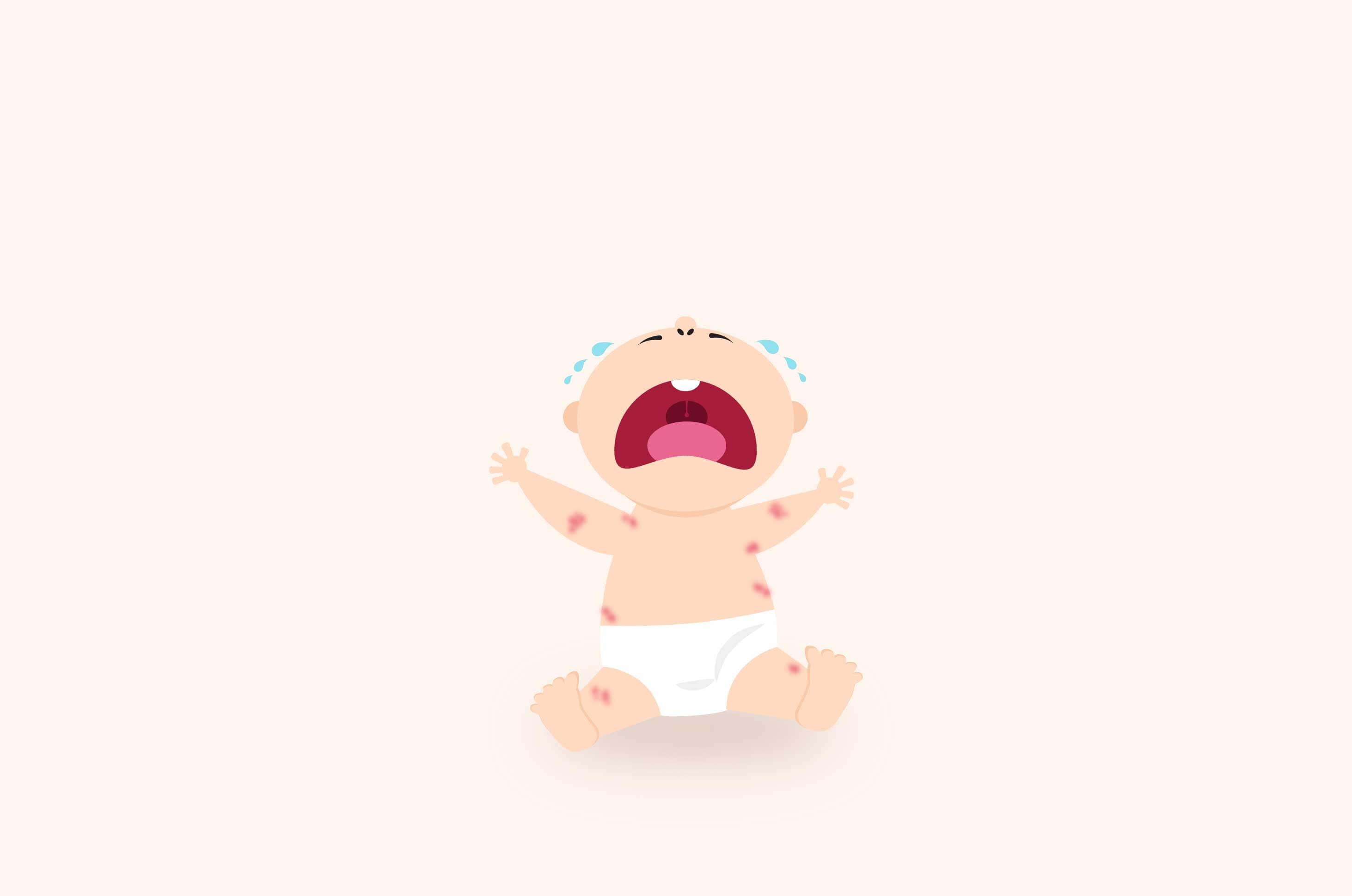 Psoriasis Bisa Menyerang Bayi, Ini Faktanya