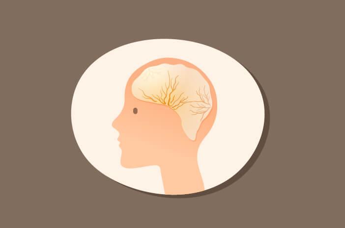 hematoma subdural, jenis trauma kepala