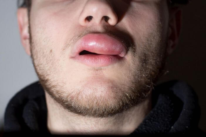 Selain Alergi, Ini 3 Penyebab Terjadinya Angioedema